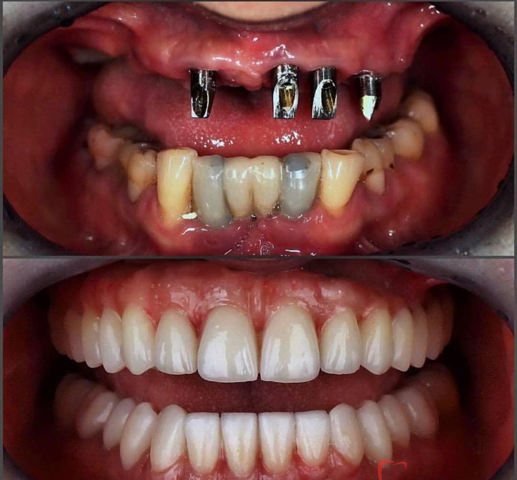 Implant dentaire : quels sont ses atouts ?